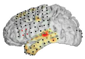NeuralAct